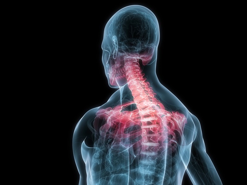 neck structure showing areas of pain