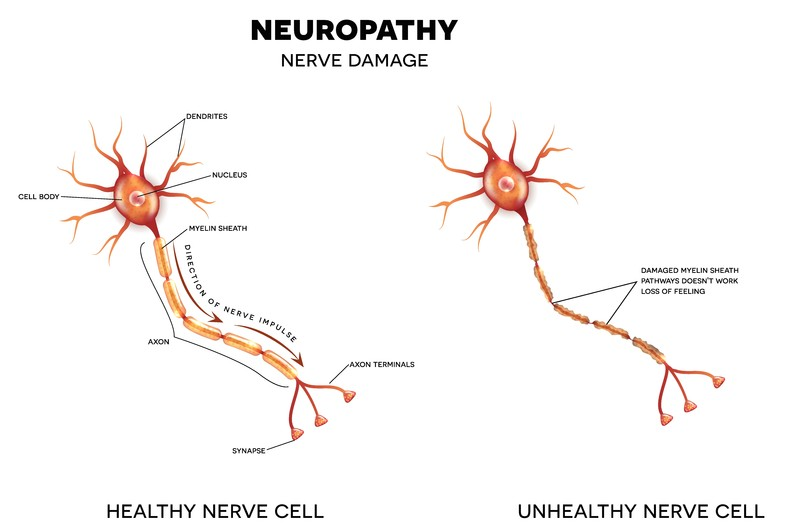 neuropathy nerve damage image showing healthy and unhealthy nerve cells