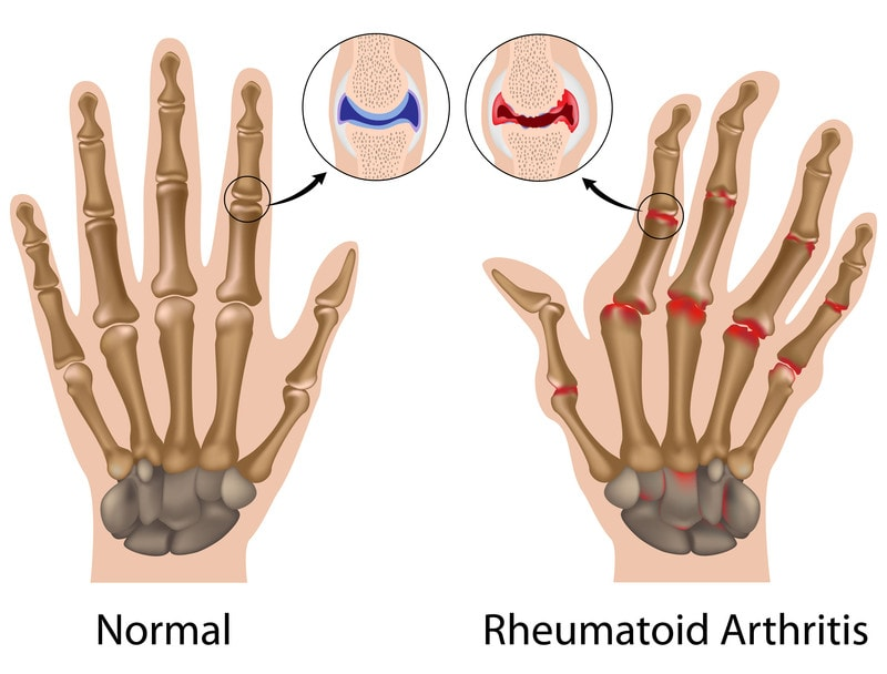 rheumatoid arthritis in the hand diagram showing deformed finger joints