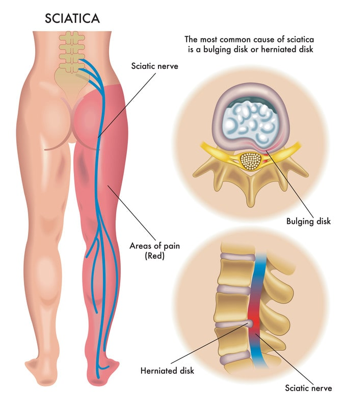 Sciatica diagram showing herniated disks and areas of pain