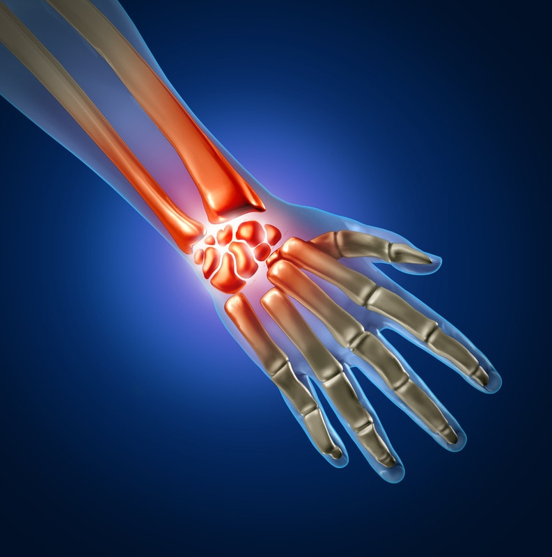 tendonitis treatment for hand pain around joints