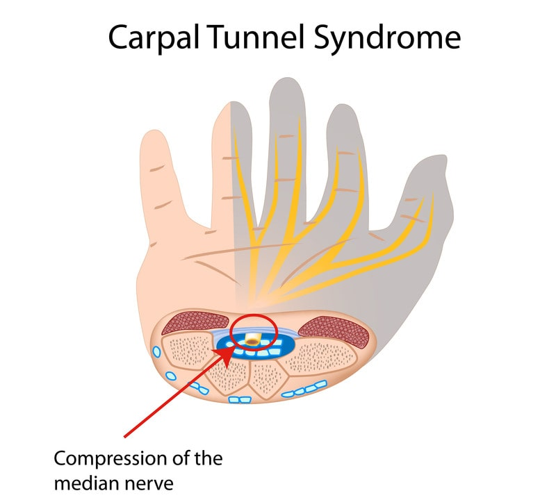 carpal tunnel syndrome treatment for compressed medial nerve